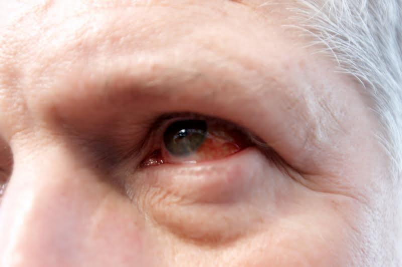 hur snabbt smittar ögoninflammation
